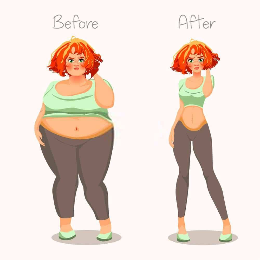 قبل وبعد عملية تكميم المعدة Skinny Girls Thin Girls Skinny People