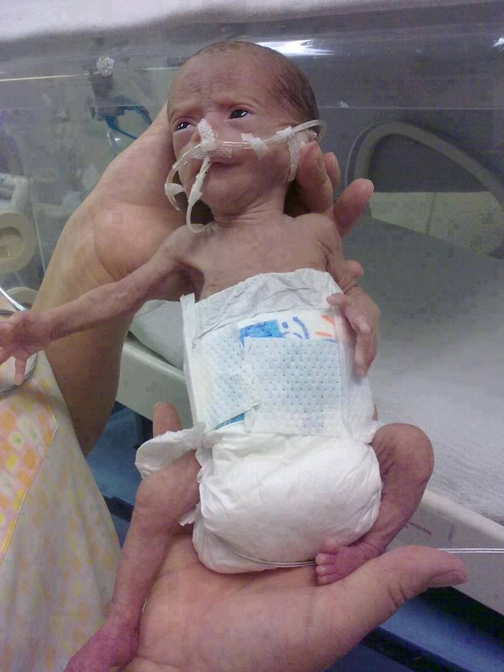 Precious preemie babies low birth weight baby. These ...