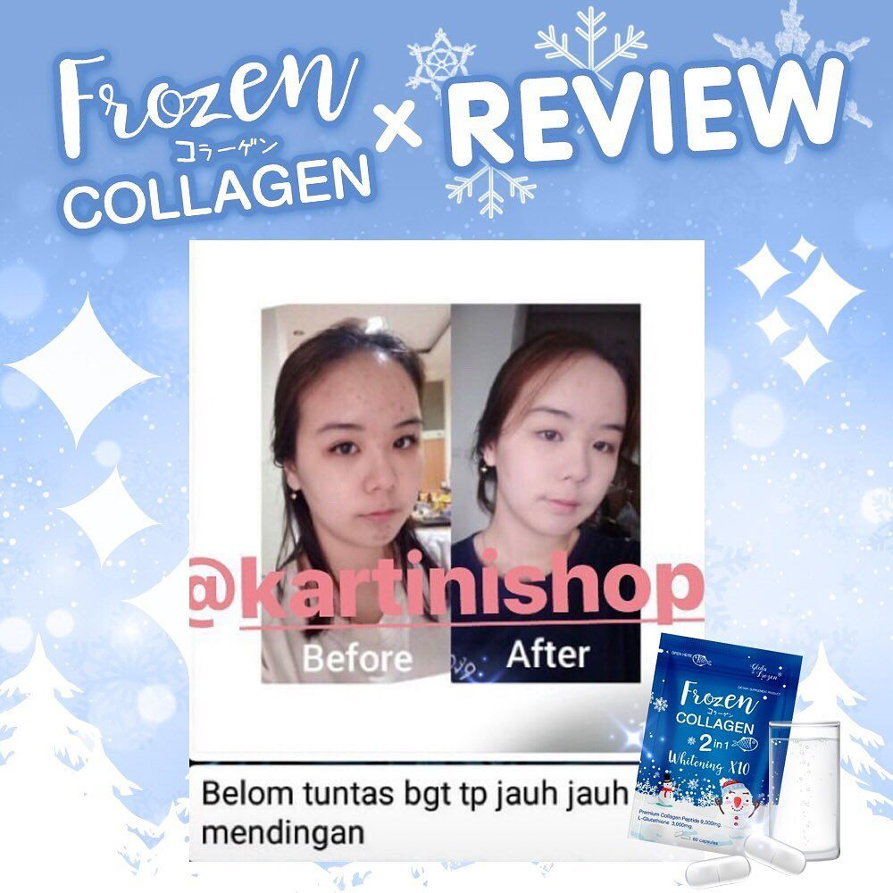 Frozen collagen review