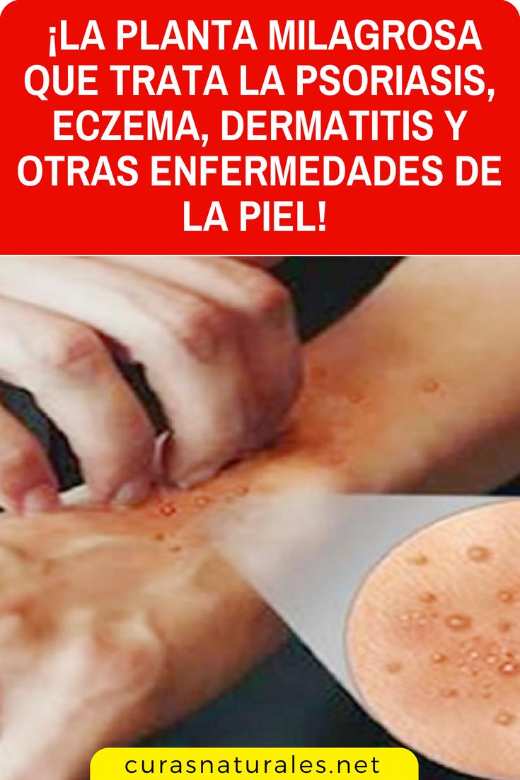 Simple Y Verdaderamente Milagroso Aprenda El Tratamiento Casero Para Psoriasis Simple Y Verdaderamente Mi Psoriasis Shampoo Psoriasis Remedies Psoriasis