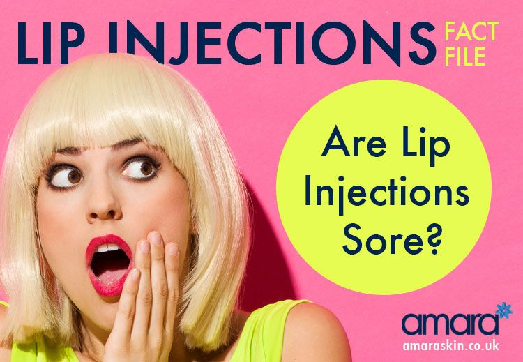 Lip injections fact file are lip injections sore