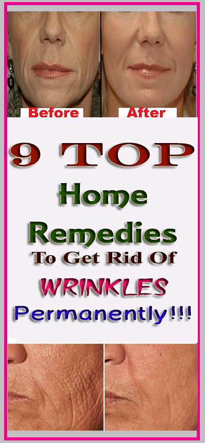 #permanently #lifestyle #wrinkles #remedies #fitness #home #top #get #rid #to #of #9Top 9 Home Remed...