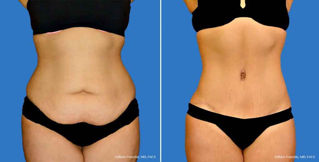 Pin On Liposuction Before And After