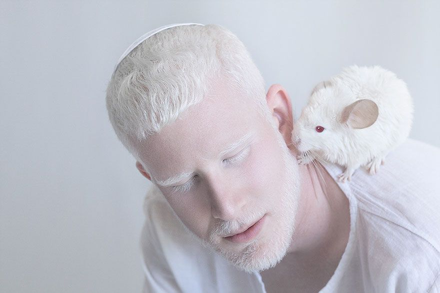 58 Albino People Who Ll Mesmerize You With Their Otherworldly Beauty Albino Human Albino Men Albinism