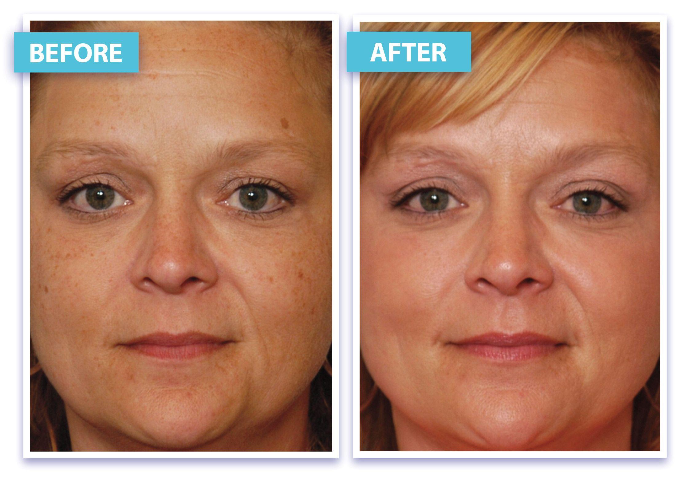 Facial rejuvenation west virginia