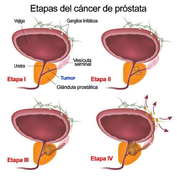 vitaminas para eliminar el cáncer de próstata