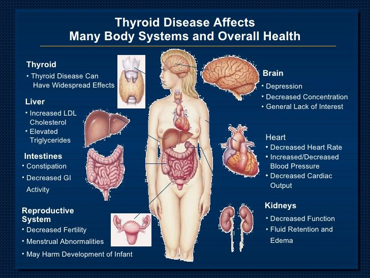 a study on hypothyroidism symptoms and treatment of the disease Hypothyroidism — comprehensive overview covers symptoms, causes, treatment of an do you have a family history of thyroid disease by mayo clinic et al thyroid disorders: hypothyroidism and myxedema crisis in: tintinalli's emergency medicine: a comprehensive study guide 7th ed.