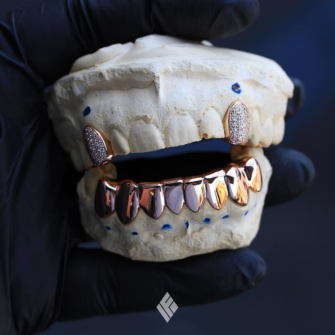 14k Rose Gold Bottom 8s And Top 2 Fully Iced Individual Canines Custom Made For Stone Brickstone Grillz Customjewelry Ifan Gold Grillz Grillz Grillz Teeth