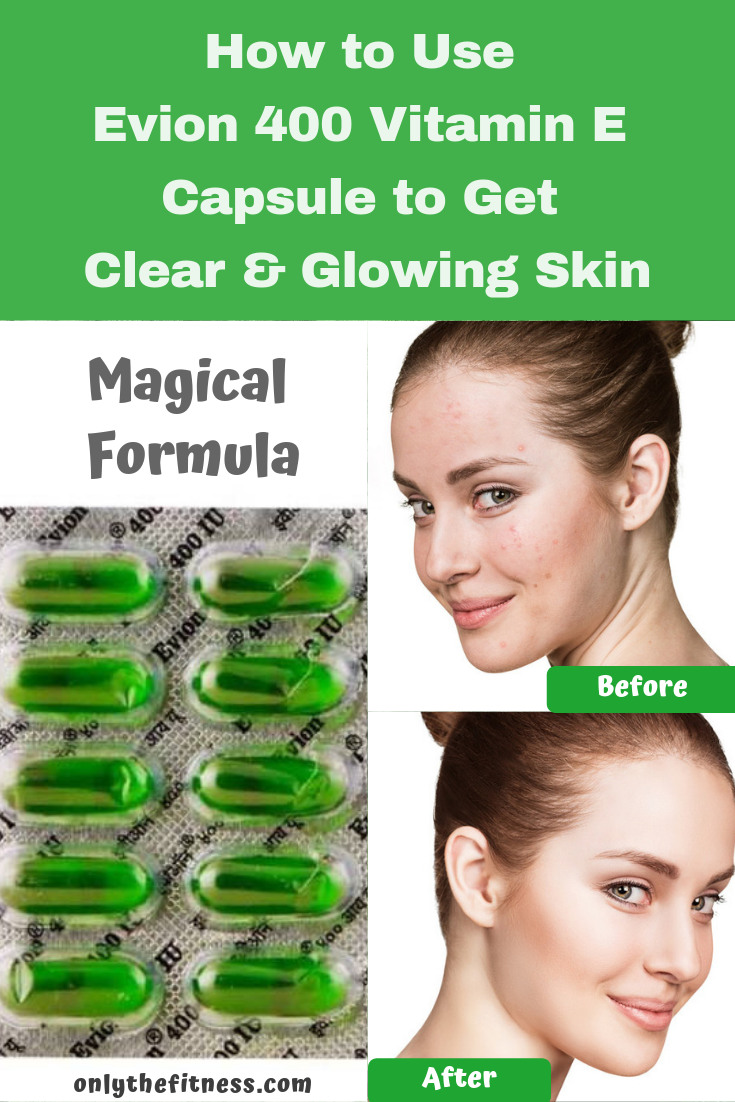 Pin By Zainab Hasan On Skin Care In 2020 Vitamins For Skin Vitamin E Capsules Uses Clear Glowing Skin