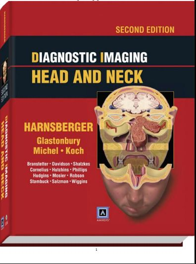 Diagnostic imaging head and neck 2nd edition pdf harnsberger pdf diagnostic imaging head and neck 2nd edition pdf harnsberger fandeluxe Choice Image