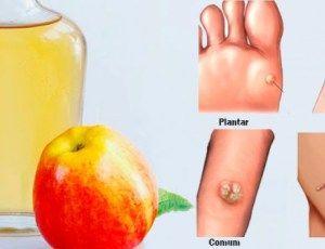 Elimine qualquer verruga da pele usando apenas 1 ingrediente - testado e aprovado! - Dicas Aki!