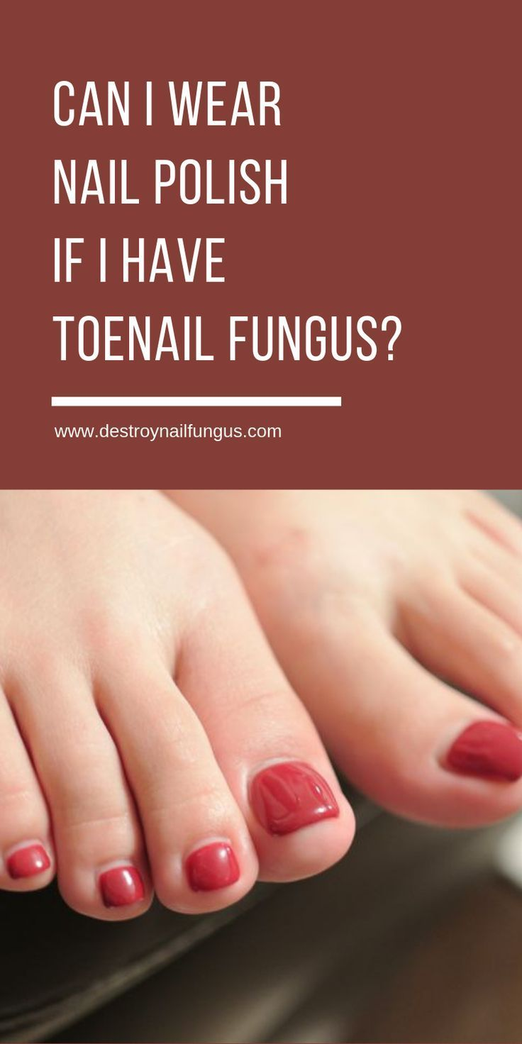 Can I Wear Nail Polish If I Have Toenail Fungus What You Must Know Nail Fungus Cure Toenail Fungus Nail Fungus Remedy