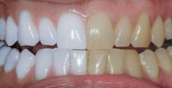 She Mixes These 2 Ingredients And Puts Them On Her Teeth What It