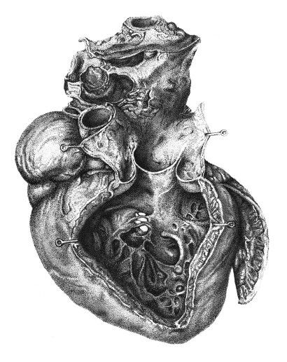 Medical illustration | Medical drawings, Medical ...