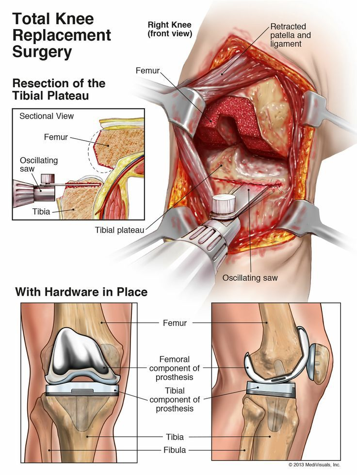 The Total Knee Replacement   Anatomy, Physiology & Nursing ...