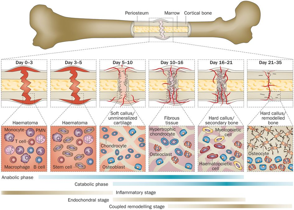 The Role of Chondrocytes in Fracture Healing.@ http://www.omicsgroup ...