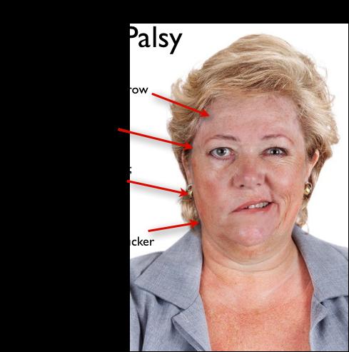 edema facial paralysis hyperacusis excessive tearing