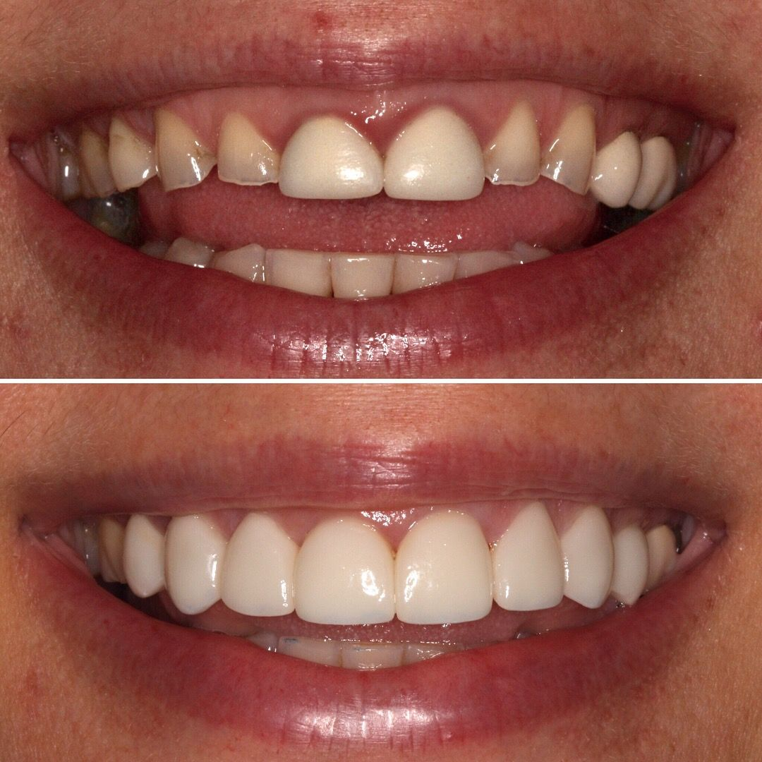8 veneers to cover and protect front teeth while enhancing