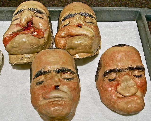 Plaster models World War II facial reconstruction models ...