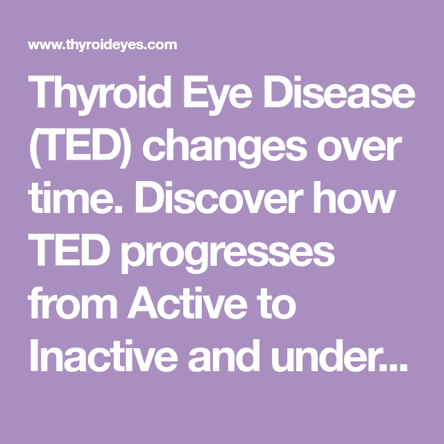 Thyroid Eye Disease Ted Changes Over Time Discover How Ted
