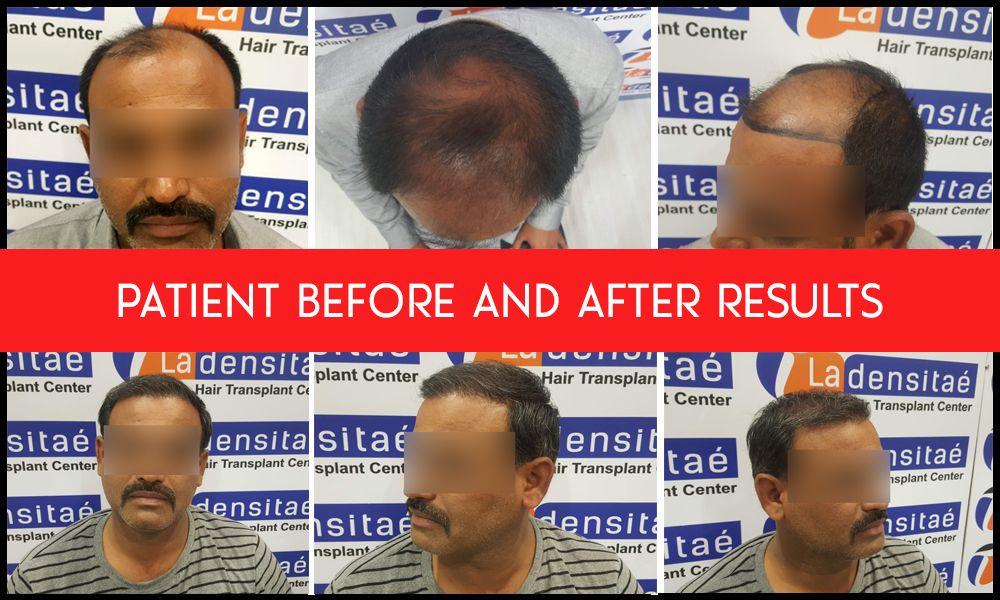 See amazing hair transplant result at la densitae hair clinic Gallery