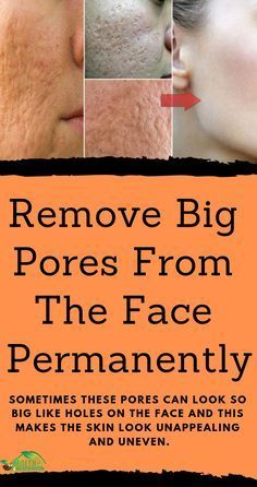 has pores, but some people have them big and some smaller. Usually those with a greasy T-zone are more prone to such pores. Sometimes these pores can look so big like holes on the face and this makes the skin look unappealing and uneven. Regardless of the trying and methods you use for skin care, pores will still stay and linger on the face ...