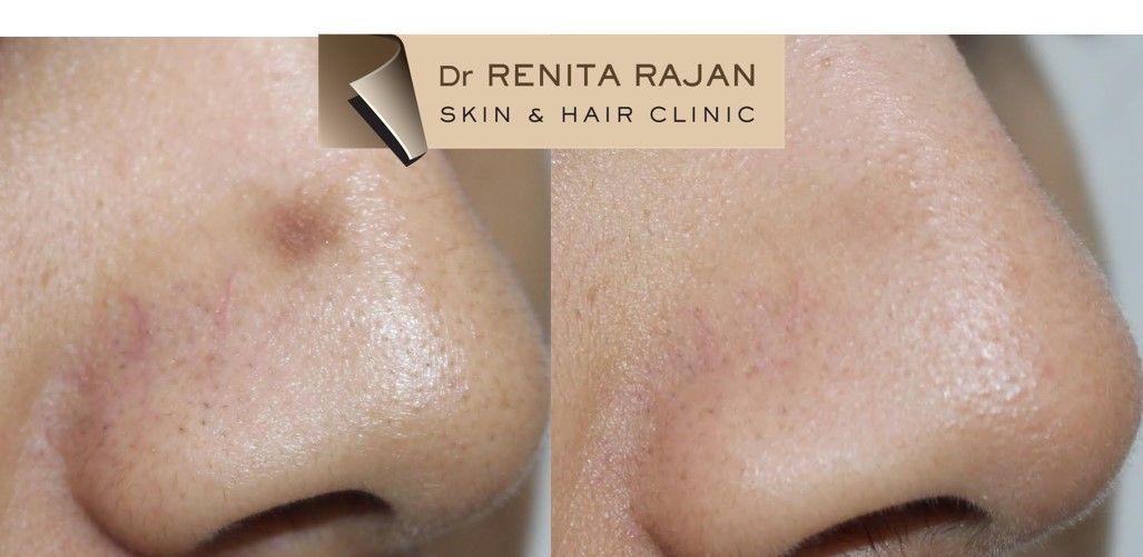 post inflammatory hyperpigmentation cream