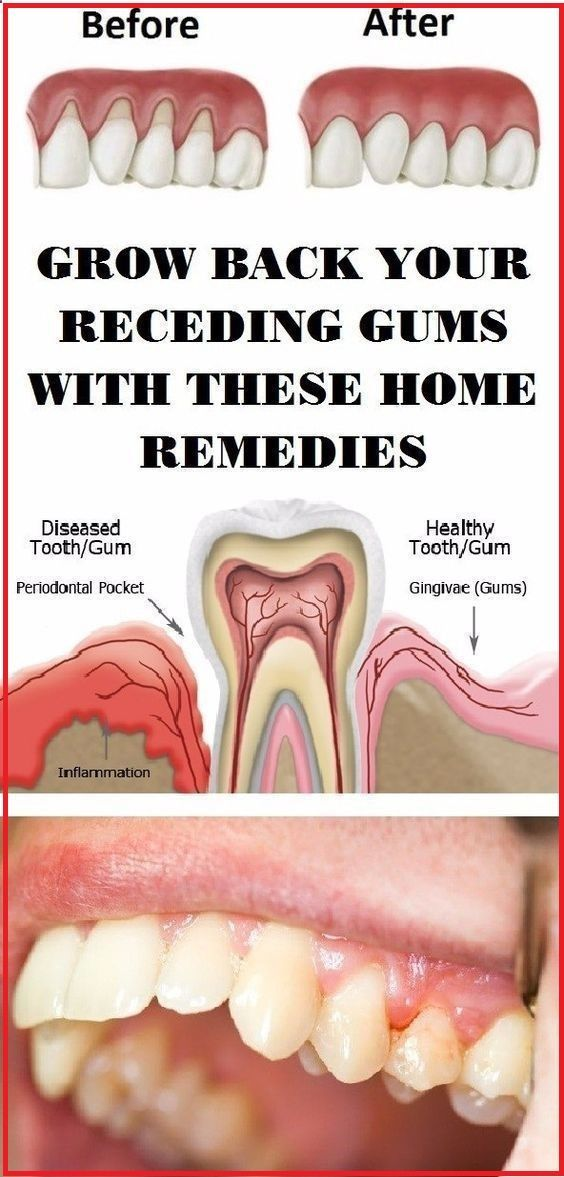 Grow Back Your Receding Gums With These Natural Remedies !  #lifehacks  #beautyhacks