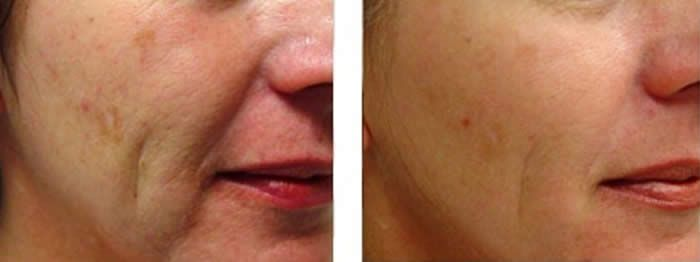 21 Century Dental 21st Century Medical Spa Cosmetics Laser Natural Skin Care Remedies Skin Care Solutions
