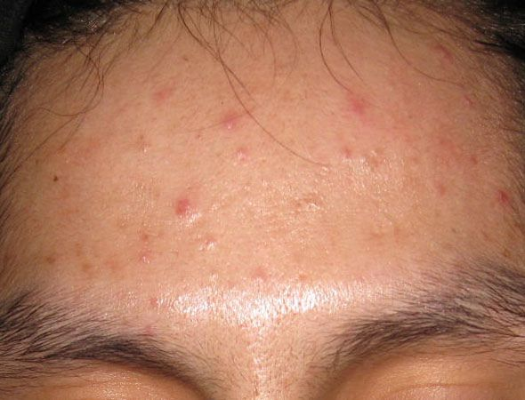 Acne Foruncular Looking This Holistic Clear Skin System To Cure Your Acne Http Www Health Natural Acne Treatment Exposed Skin Care Acne Treatment Reviews