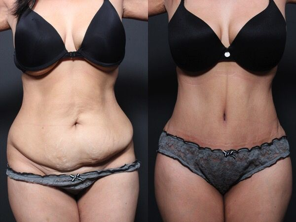 Full tummy tuck and liposuction of the abdomen and waist performed