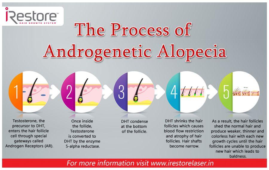 The Process of Alopecia
