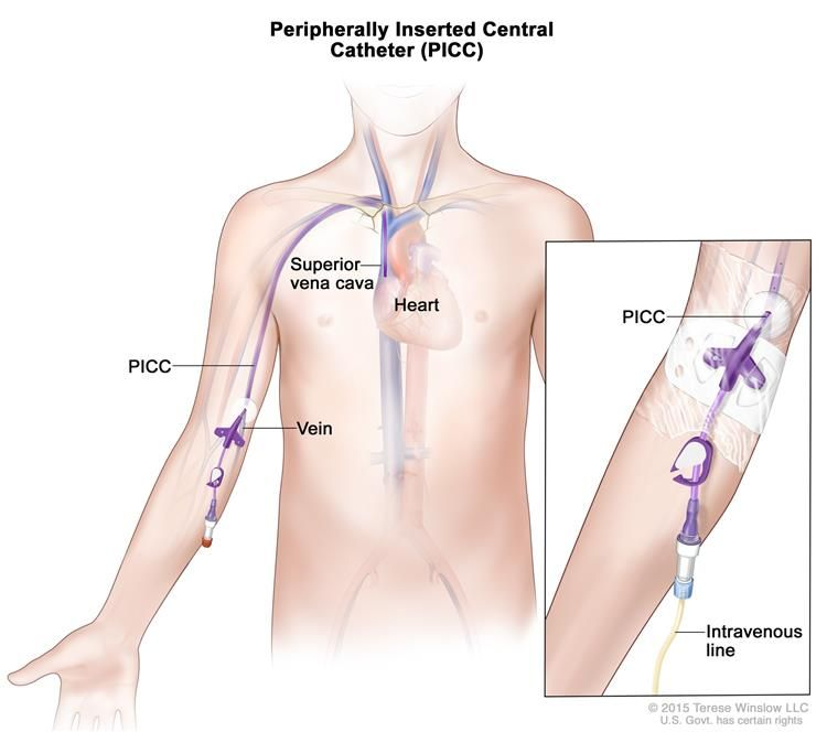 Picc Nurse Sample Resume Peripherally Inserted Central Catheter Picc A Thin Flexible Tube .