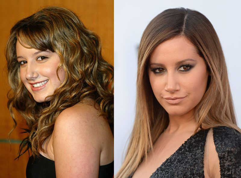 Ashleys nose celebs before and after plastic surgery