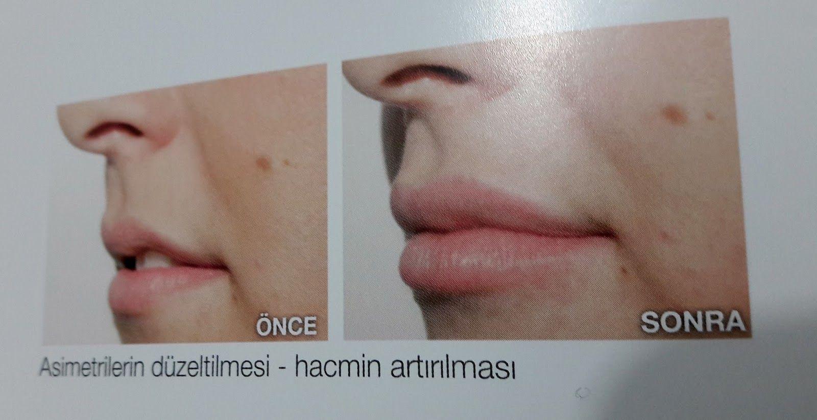 Doğal yöntemler ile dudak dolgunlaştırma