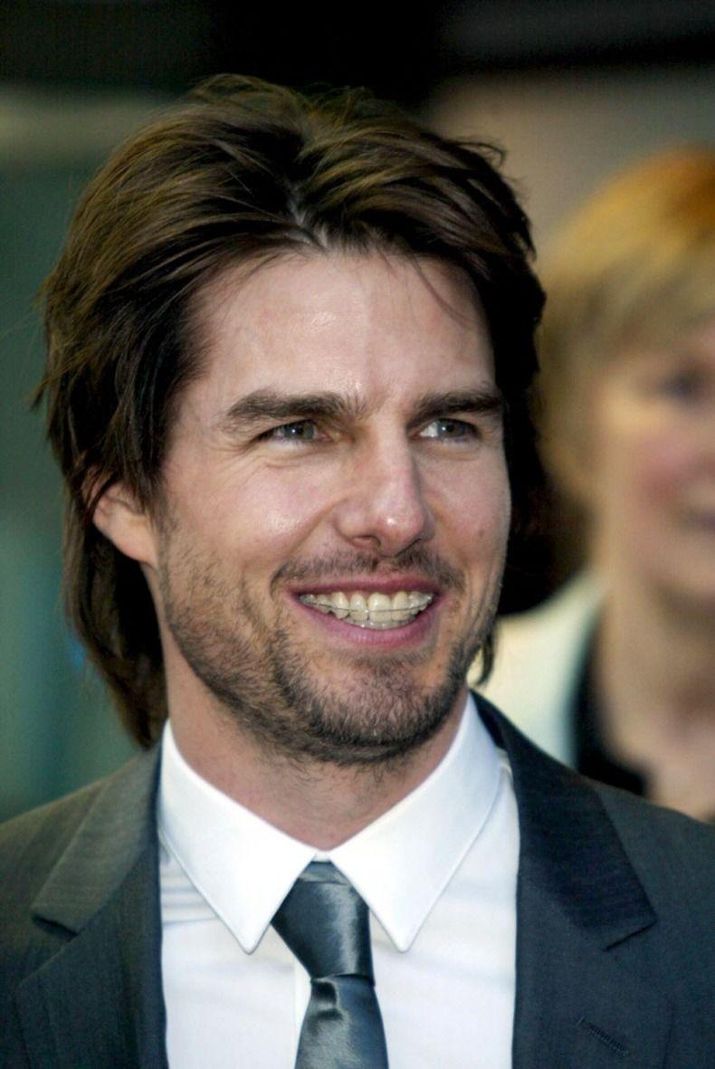 CELEBS MET BEUGEL Nog een latertje: acteur Tom Cruise droeg zonder schaamte een beugel en werd er nog vaak mee gefotografeerd ook.