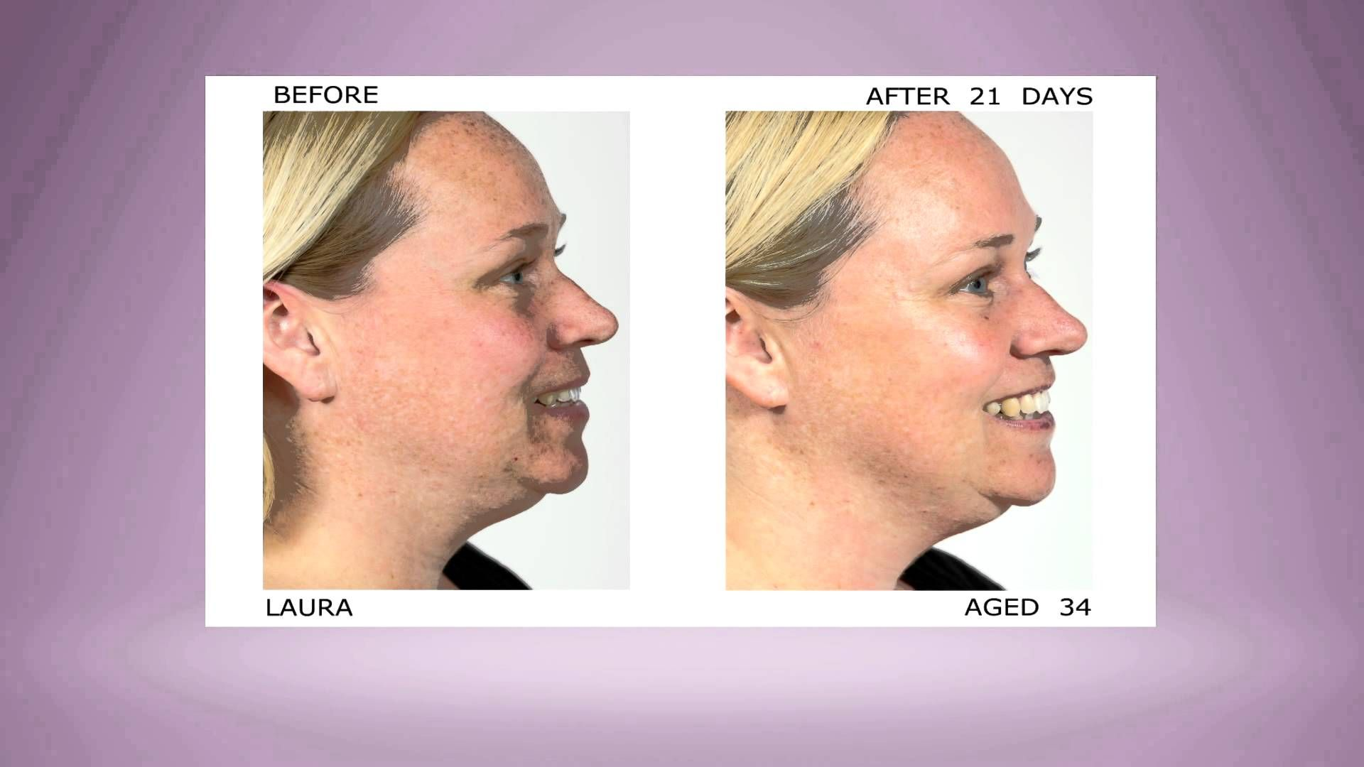 21 days to #Younger Looking #Skin