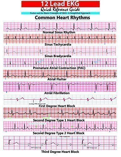 Cardiac arrest ekg strip