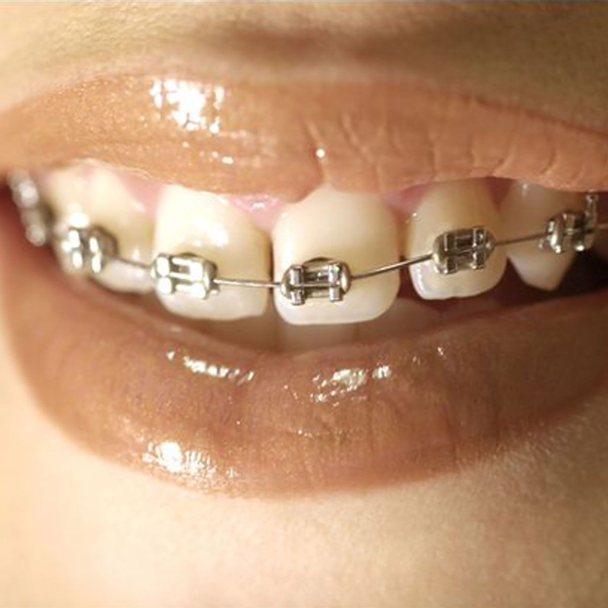 How to prevent white spots from braces ehow dental