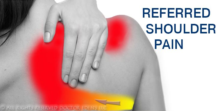 How To Get Rid Of Shoulder Pain After Gallbladder Surgery