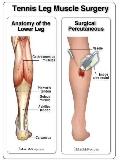 Surgery For Tennis Leg Gastrocnemius Muscle Soleus Muscle Soft Tissue Injury