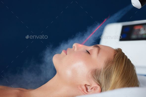 Localized cryotherapy on woman face by jacoblund Localized cryotherapy session on the face of young woman Treatment uses vaporized nitrogen to lower the skin tempera