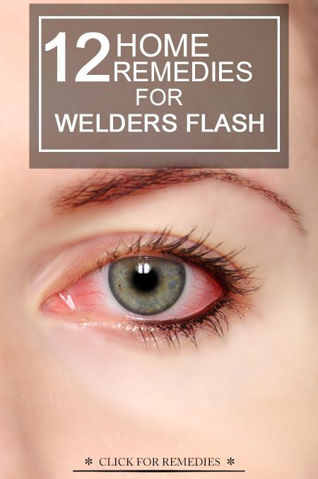 10 Effective Home Remedies To Treat Welder S Flash Itchy Eyes