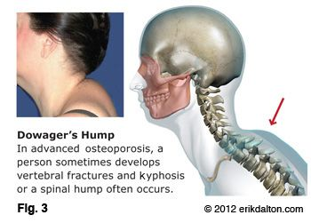 42+ Hump on back of neck from bad posture inspirations