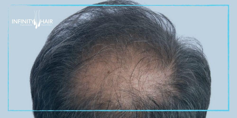 زراعة الشعر بتقنية السفير Sapphire مركز إنفينيتي هير Infinity Hair Hair Transplant Hair Transplant