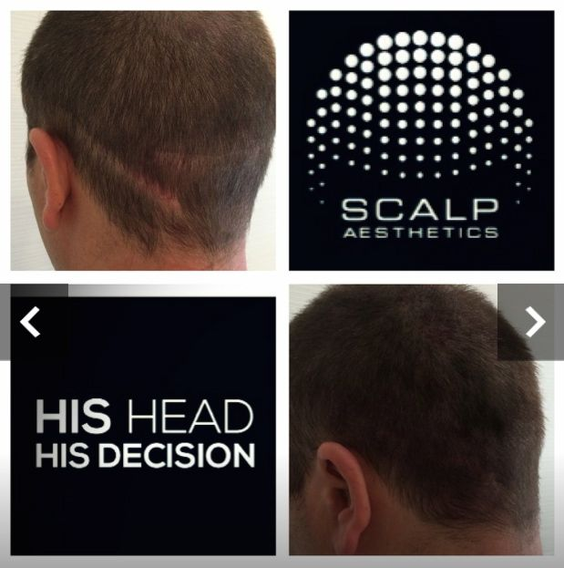 This Man Was Suffering With A Bad Hair Transplant Scar And We