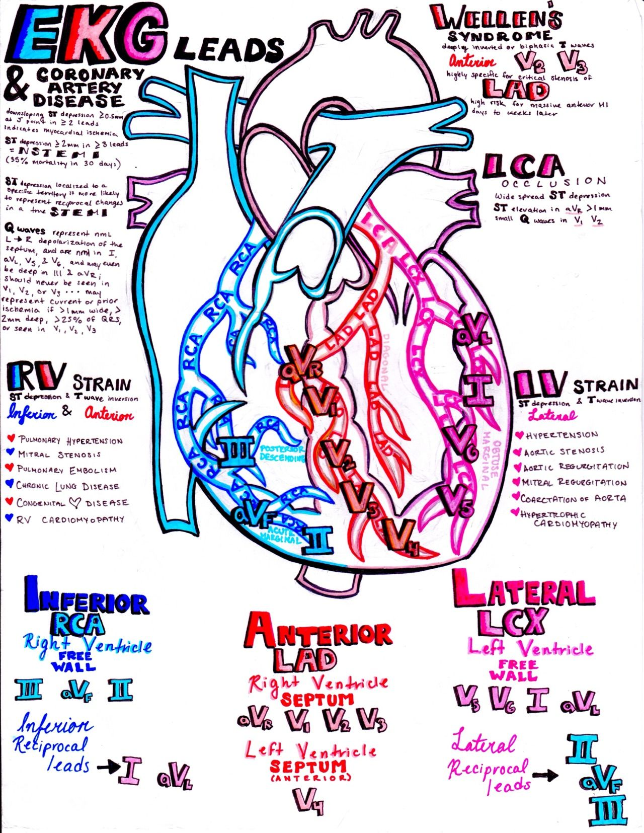 Ekg And The Coronary Arteriesyoull Find Perfect Cardiology Invention Story Of Electrocardiography Ecg By Willem Einthoven Study Guide If You Combine All My Notes Look In Archived Posts To Put It