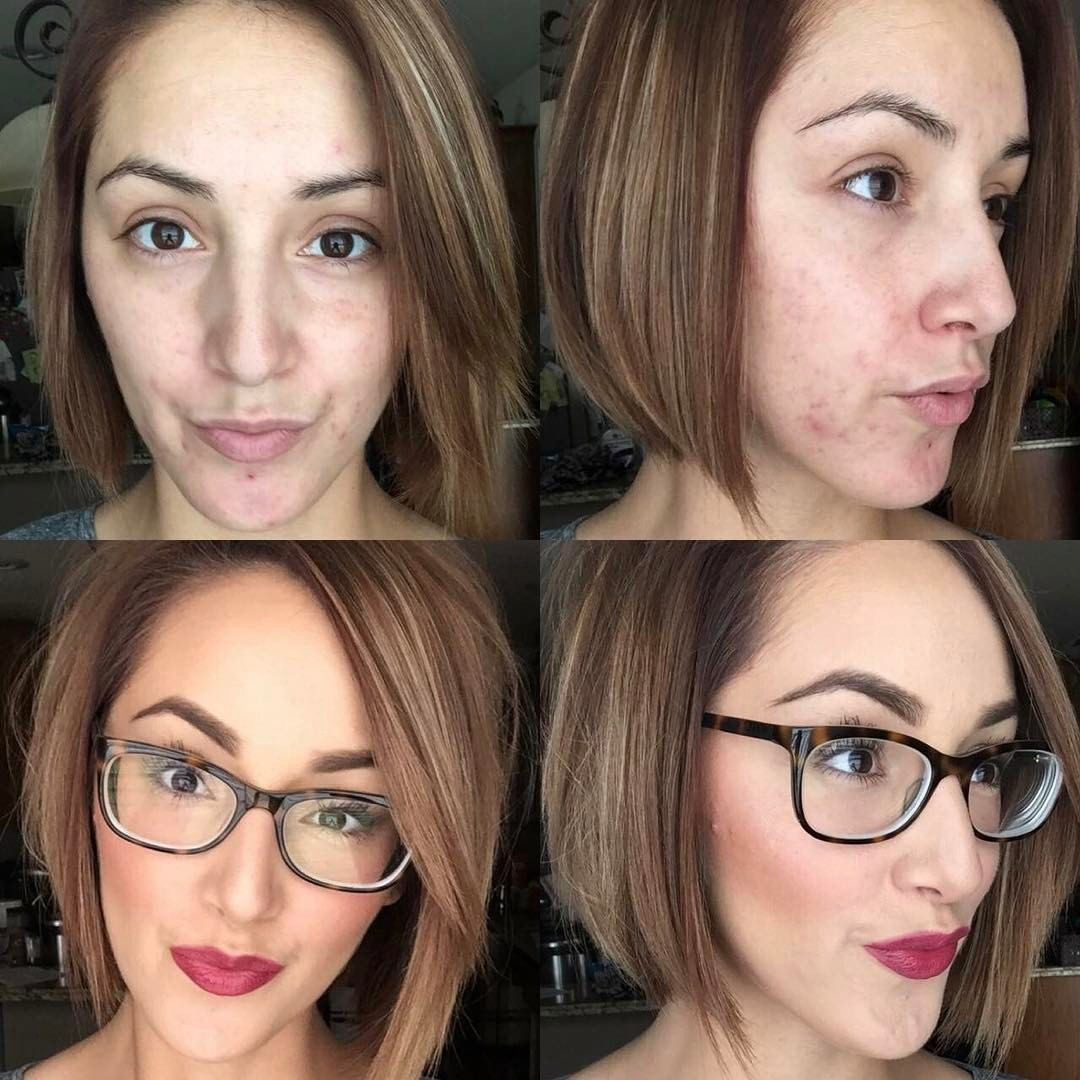 Hey Ladies!  Happy FUNDAY-SUNDAY!  Because I have some new followers, I wanted to throw it back to basics! Here is a Before&After- using my Younique Products! ⚠️This stuff gives me LIFE‼️ ... and has helped me manage my Pregnancy Acne, while camouflaging scars, uneven skin and redness- and BOOST my CONFIDENCE!  If you're interested in knowing more about these products, please feel free to comment below or message me! Hugs & Lots of Love Beauty Babes!!! ❤ ✔️Zero...