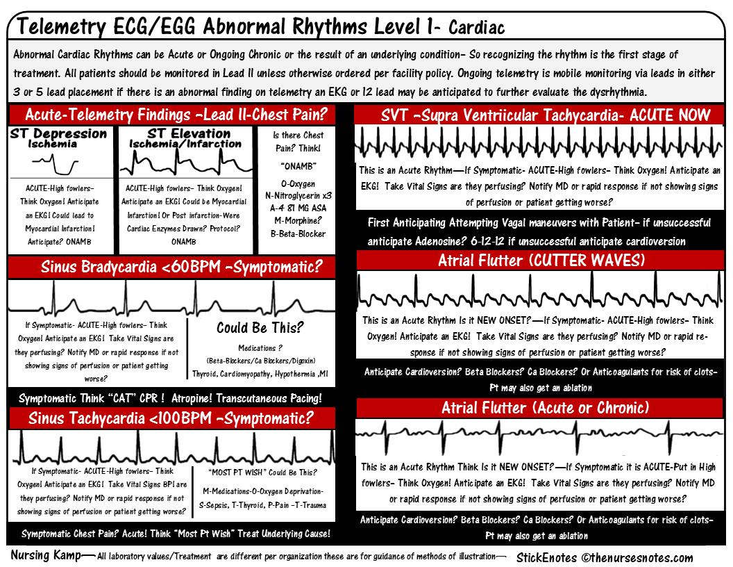 Cardiacecg ekg bradycardia atrial fibrillation flutter nursing cardiacecg ekg bradycardia atrial fibrillation flutter nursing kamp stockenotes tws xflitez Choice Image