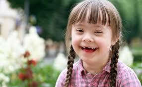 No Estoy Debajo De Lo Normal Ni Valgo Menos Ni Soy Menos Capaz Solo Funciono De Nino Con Sindrome De Down Sindrome De Down Ninos Con Necesidades Especiales